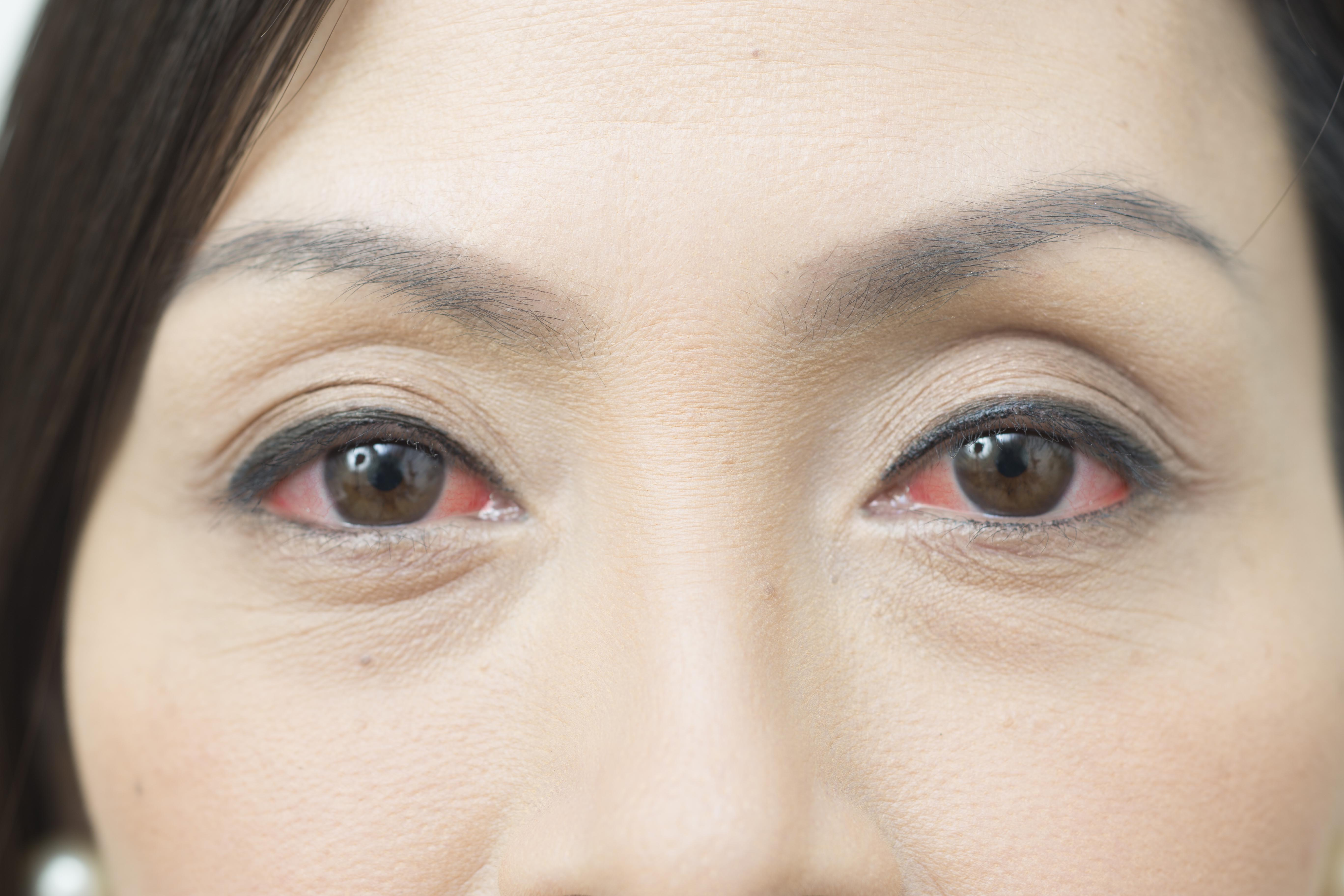 Conjunctivitis is considered a less common symptom of the coronavirus disease